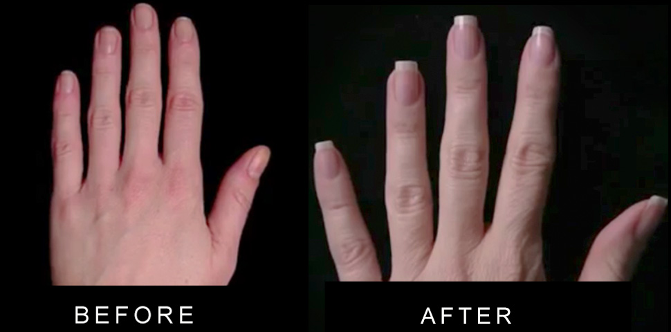 Gel Coat Before And After