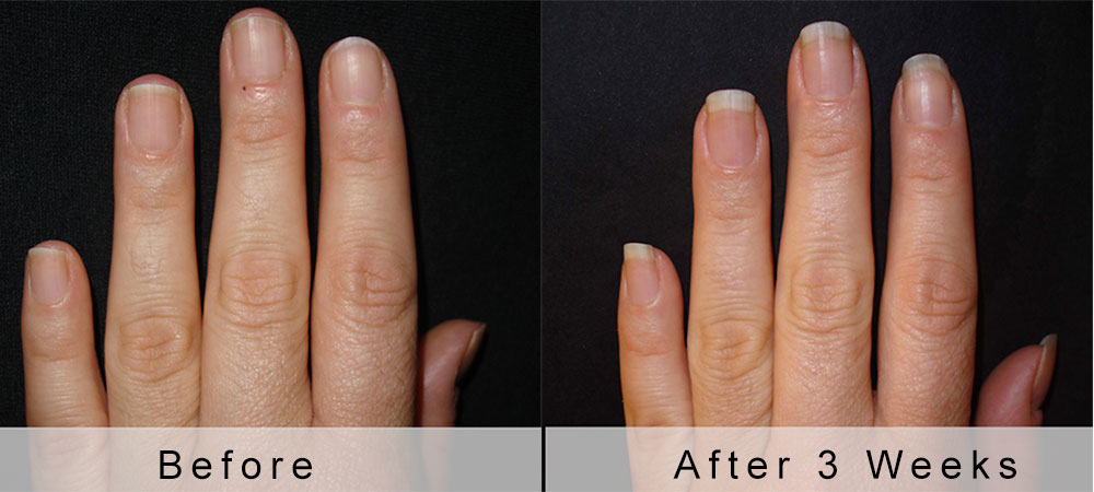 Repair Nails After Gel Great Photo Blog About Manicure 2017
